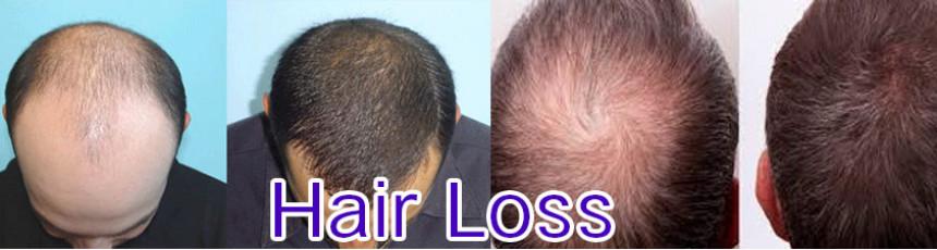 Pressure Reducing Medication, Hair Loss